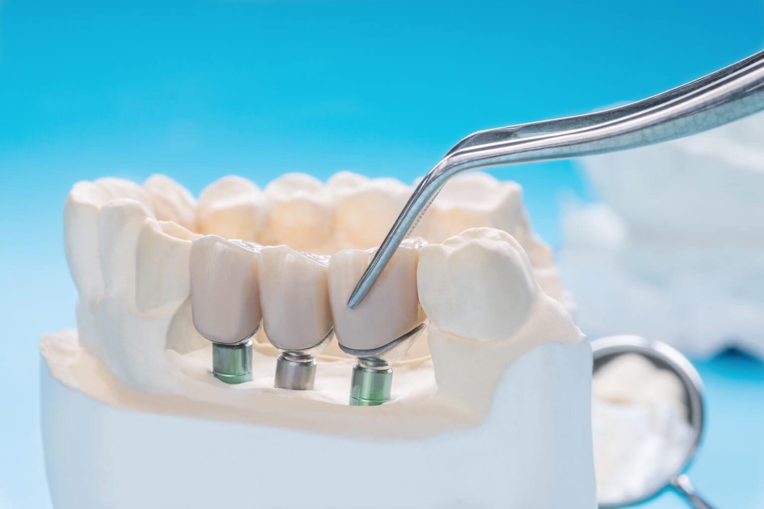 Dental Treatment in Jaipur